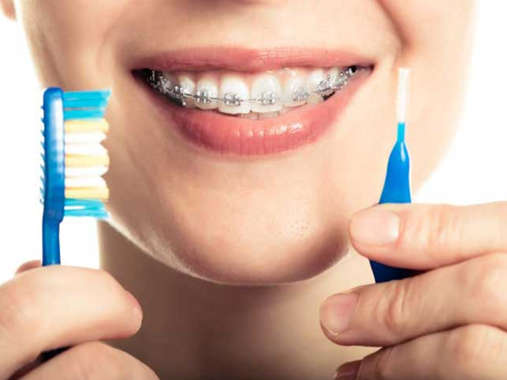 Productos de Ortodoncia